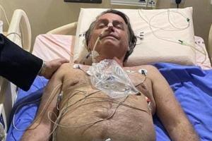Alexandre Padilha: Sobre o estado de saúde de Jair Bolsonaro